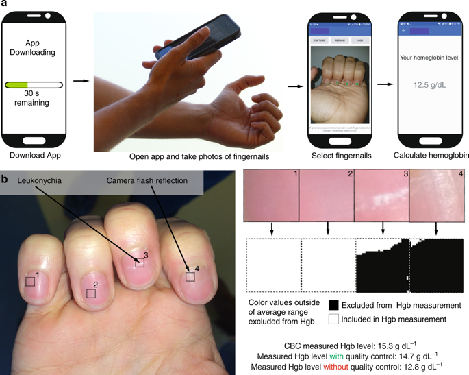 smartphone app detects anemia