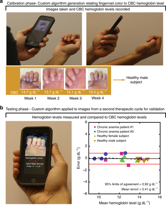 smartphone app to detect anemia