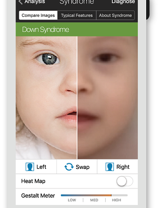 Face2Gene App Uses AI to Identity Genetic Disorders Using Photos